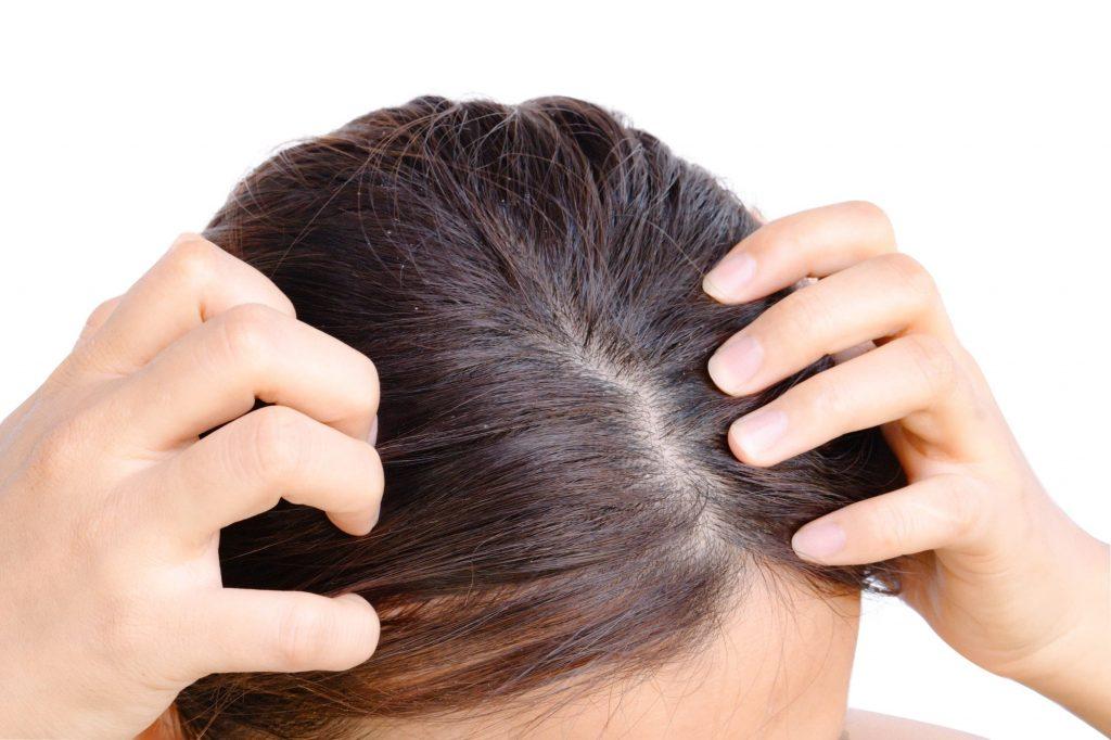 Le psoriasis provoque des démangeaison des zones affectées ainsi que l'apparition de lésions cutanées.