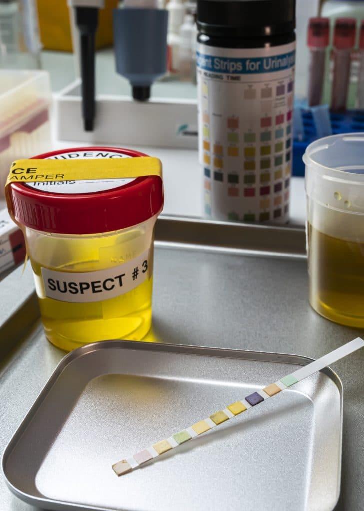 CBD dans l'urine : combien de temps reste-il ?